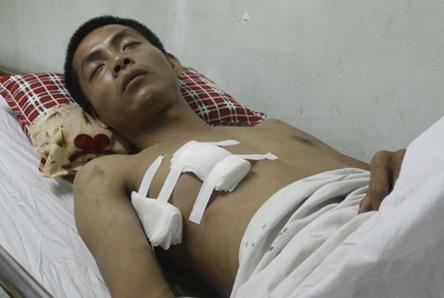 Anh Minh đang nằm điều trị vết thương tại bệnh viện Việt Đức (Hà Nội)