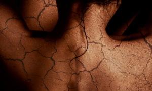 7 nguyên nhân khô da và cách khắc phục