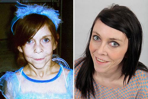 Zara trước và sau khi phẫu thuật căng da mạt. Ảnh: Mirror