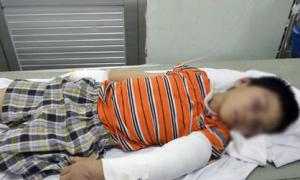 Bé trai 6 tuổi bị cha dượng đánh gãy tay chân