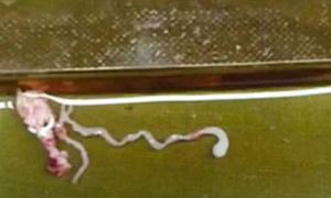 Sán 8 cm ký sinh trong não
