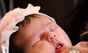 Bé sơ sinh chào đời đã có hai răng