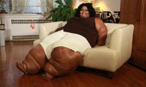 Người phụ nữ khổ sở vì đôi chân to như voi