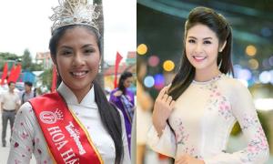 Dàn Hoa hậu, Á hậu 'lên đời' nhan sắc nhờ sửa răng