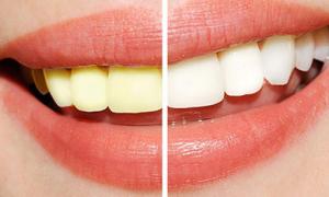 Bạn có mắc sai lầm khi chăm sóc răng miệng khiến răng ố vàng không?