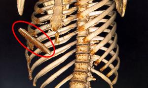 Ca mổ thần tốc cứu người bị lưỡi dao đâm thấu gan phổi