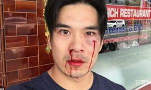 Diễn viên 'Truy sát' bị đánh chảy máu mũi, mẻ răng ở Sydney