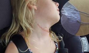 Chiếc mũ có quai khóa suýt lấy mạng cô bé 6 tuổi