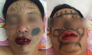 Vợ vẽ chằng chịt lên mặt chồng lúc ngủ vì tội ham nhậu nhẹt