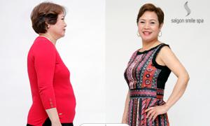 Nhiều chị em quyết giảm béo dù không thừa cân
