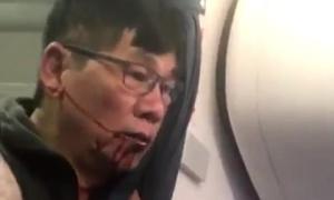 Bác sĩ gốc Việt bị lôi khỏi máy bay nhập viện vì chấn thương khắp người