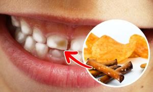 8 loại thực phẩm âm thầm hủy hoại hàm răng của bạn