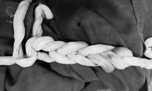 Cặp song sinh chào đời với dây rốn tết vào nhau