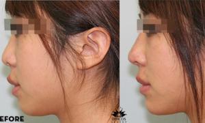 Chữa ba khuyết điểm mũi bằng chỉ sinh học không phẫu thuật