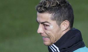 C. Ronaldo đi tập với mắt sưng húp, tím bầm