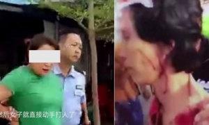 Lao công bị đánh chảy máu đầu vì vô tình làm bẩn giày của nữ khách