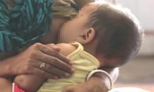 Bé 3 tuổi tử vong sau khi bú sữa mẹ nhiễm độc do rắn cắn