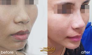 Ưu đãi đến 20% phí nâng mũi và căng da bằng chỉ Hàn Quốc