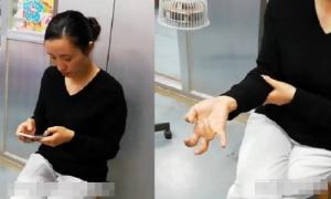 Biến dạng bàn tay sau khi dùng điện thoại cả tuần không nghỉ