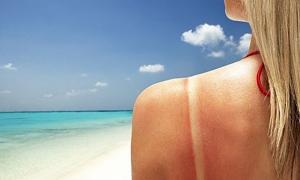 Giải cứu nhanh và phục hồi làn da cháy nắng