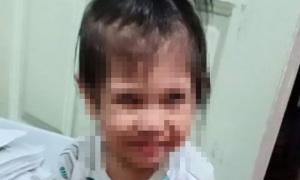 Bé 2 tuổi tử vong vì nghẹn mẩu bánh mì