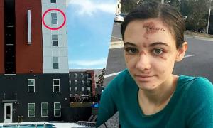 Nữ y tá say ngã từ cửa sổ tầng 4