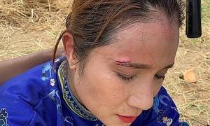 Cát Tường bị thương vì đạo cụ rơi vào mặt