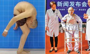 'Người đàn ông gập người' được đứng thẳng sau 25 năm