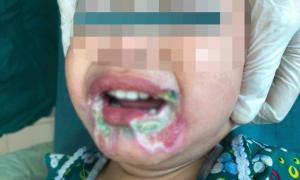 Bé 2 tuổi hoại tử miệng do cắn dây điện