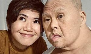 Thư gửi bố bị Down: Bố là người mạnh mẽ nhất
