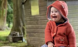 Bé 2 tuổi bị Down thành gương mặt đại diện thời trang