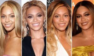 Chuyên gia nghi ngờ Beyoncé tiêm filler để giữ phong độ