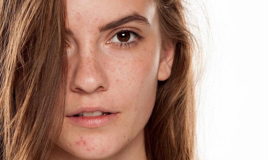 3 thành phần cải thiện sắc tố da