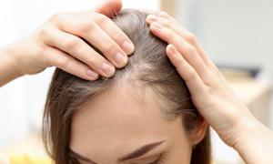 7 dấu hiệu cho thấy bạn gội đầu quá thường xuyên
