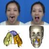 Màn 'lột xác' của nữ điều dưỡng có 'lưỡi khổng lồ'