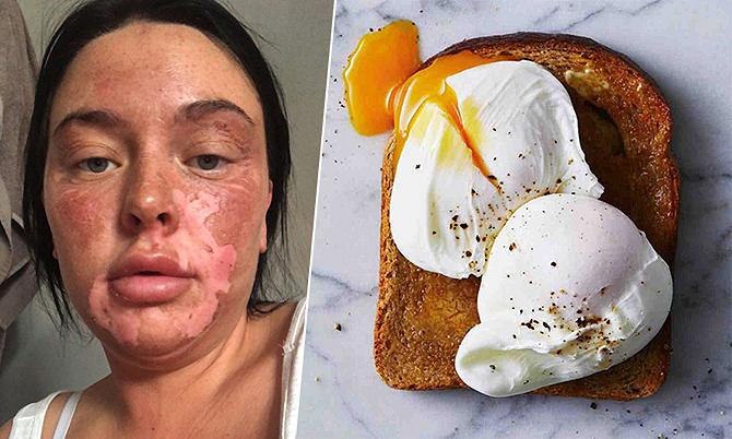 Bà mẹ hai con bỏng mặt vì học cách chần trứng trên Tiktok