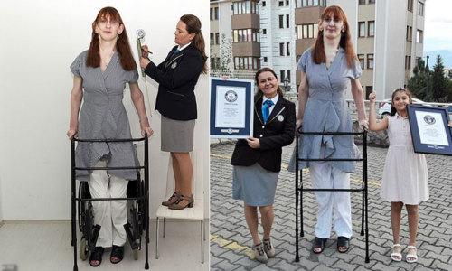 Cô gái 24 tuổi cao nhất thế giới